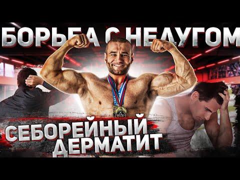 Гончаров Олег - Себорейный дерматит. Лечение. Проблемы на курсе.