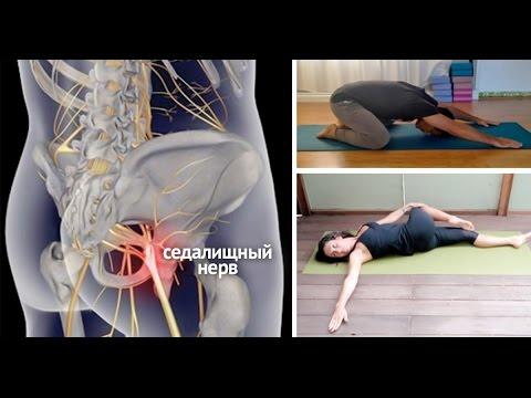 Как быстро снять острые ноющие боли при защемлении седалищного нерва