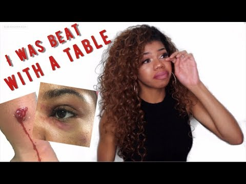 MY BOYFRIEND BEAT ME WITH A TABLE | WARNING GRAPHIC PHOTOS | Domestic Abuse Storytime