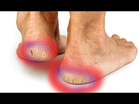 best treatment for painful cracked heels