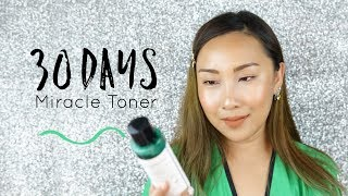 Review | Some by Mi 30 days Miracle Toner เช็ดๆ ผิวโกลวเลยจ้า