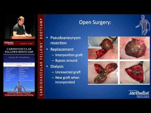 Management And Access Aneurysms And Infection (Jacob Nurko, MD)