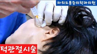 턱관절통증시술,  3차신경통차단술 ,악관절증후군,