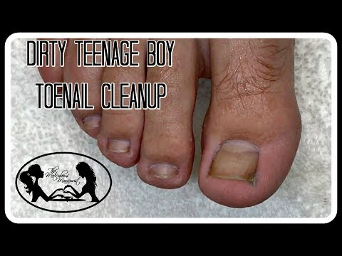 Clean Dirty Age Boy Toenails