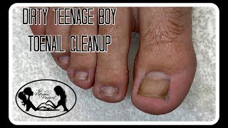 Pedicure: How to Clean Dirty Teenage Boy Toenails