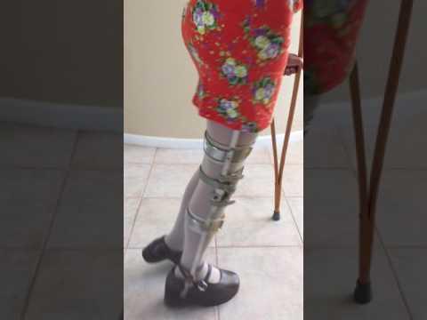 Polio Woman Brace Shoe 2