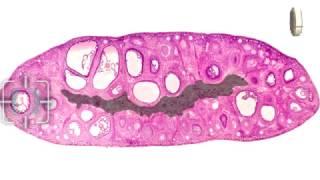 Гистологическое строение органов женской половой системы. Учебный фильм.