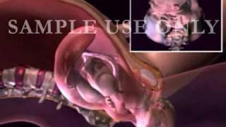 توضيح الولادة الطبيعية للمرأة  Birth of Baby