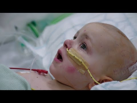 A Three-Year-Old Undergoes A High Risk Tumour Operation | Hospital