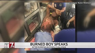 Preteen Suffers Second-degree Burns From \