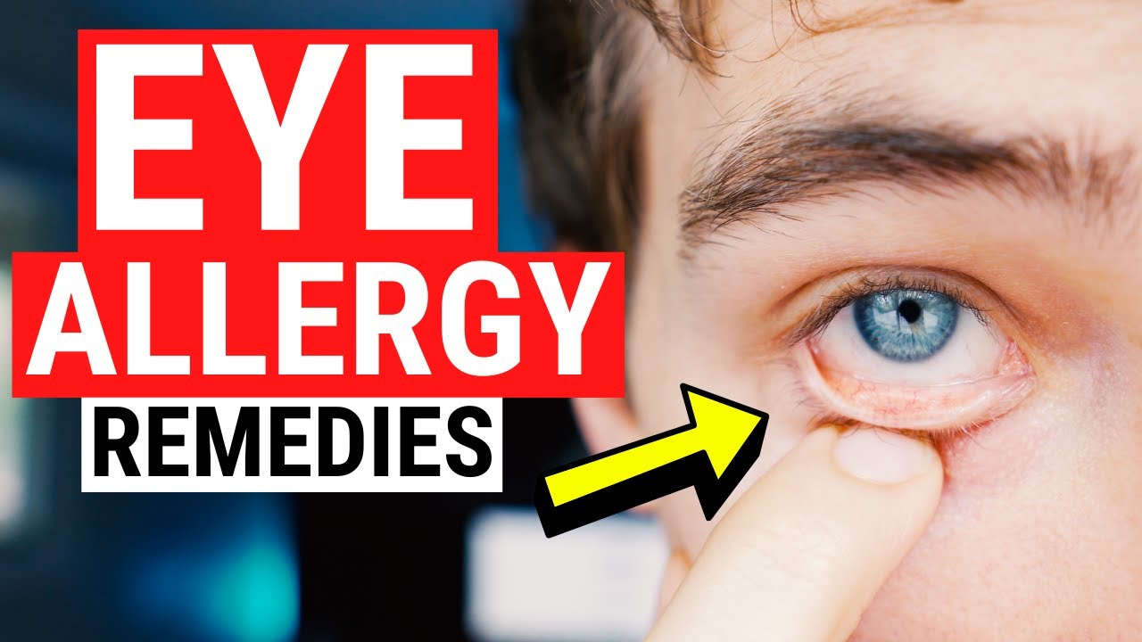 Pin On Eye Health