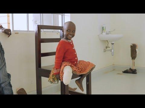 Revolutionizing Prosthetics, Redefining Disability