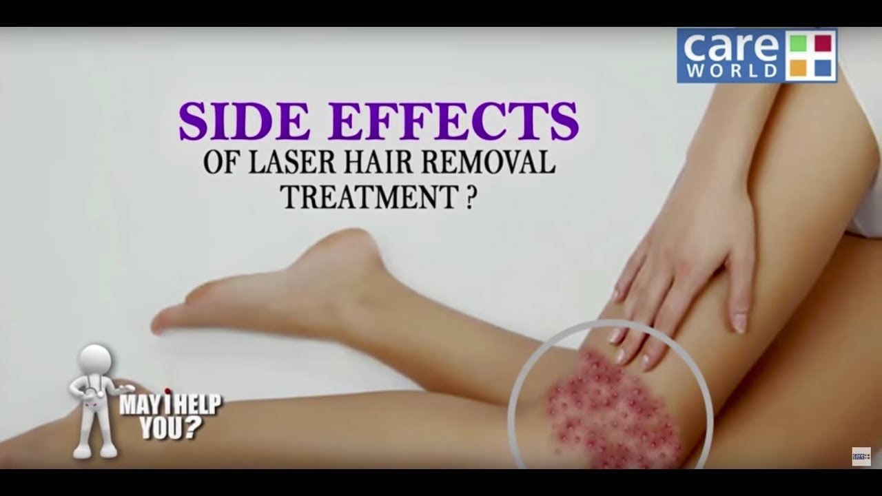 Is Laser Hair Removal Safe Mihy Dr Puneet Sarogi Youtube