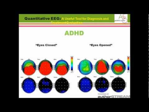 QEEG A Useful Tool For Diagnosis And Treatment Evaluation