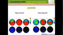 hqdefault - Qeeg Brain Mapping Depression
