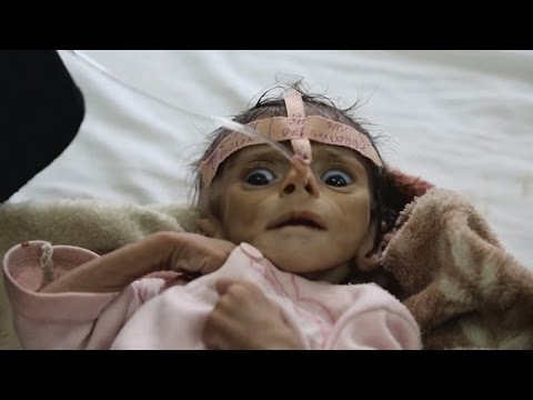 Starving baby shows horrific effects of war in Yemen