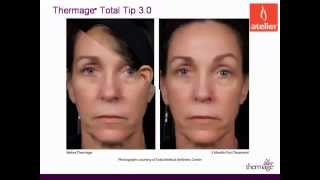 New Thermage TOTAL Tip 3.0 @ Atelier Thumbnail