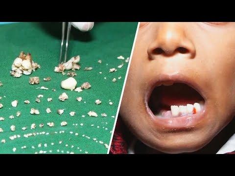 Doctors Remove Over 500 Teeth From Boy's Mouth