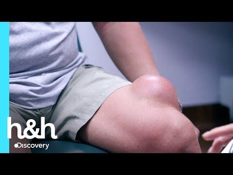 El quiste MÁS GRANDE del mundo | Dra. Sandra Lee: especialista en piel | Discovery H&H