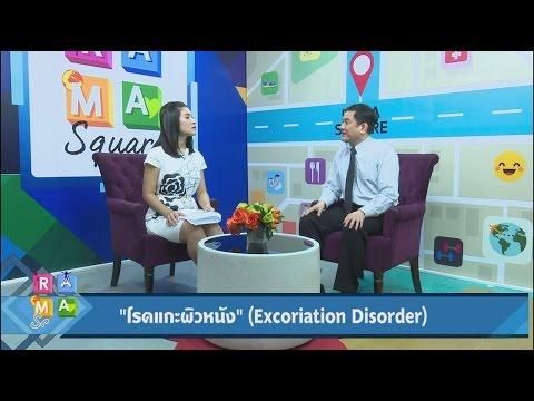 """""""โรคแกะผิวหนัง"""" Excoriation Disorder : Rama Square ช่วง จิตคิดบวก 25 เม.ย.60 (4/4)"""
