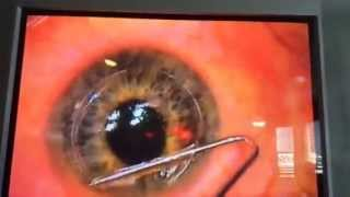 IntraLase Wavefront Guided LASIK surgery Hoopes Vision Utah July 2014