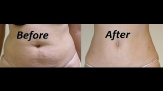 how to lose belly fat In 5 Days: Lemon Flat Belly Detox Water   how to reduce belly fat & weight