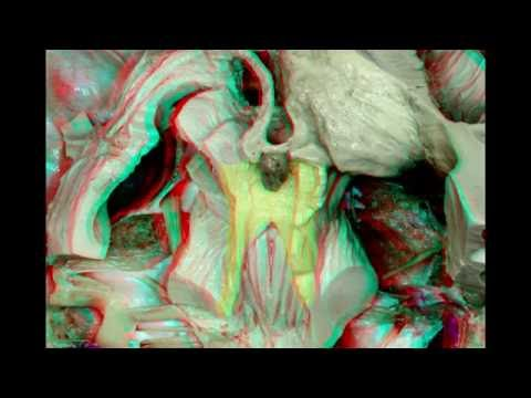 Internal Structures and Safe Entry Zones of the Brainstem (3D Anaglyph)