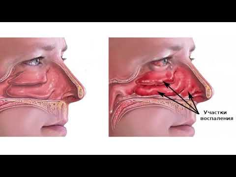Болит от насморка под носом