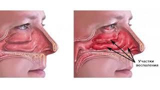 Заложенность носа хронически. ВАЗОТОМИЯ.