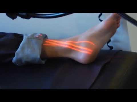 Erchonia Laser Recovery Promo