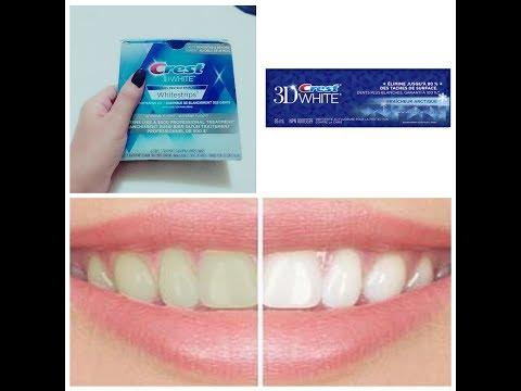 تجربتي للحصول على أسنان ناصعة البياض : Crest 3D WHITE Whitestrips 👌👌