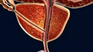 Urologia - Sintomas de HPB (Hip