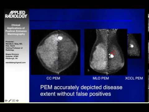 Clinical Applications of Positron Emission Mammography (PEM)