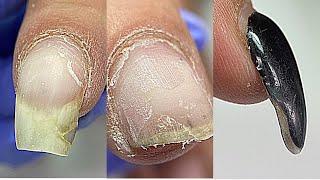 Трещины пропилы Ремонт и наращивание ногтей Клюющие ногти Градиент за минуту Маникюр