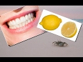 Put This Lemon-Baking Soda Mixture On Your Teeth for ONE Minute to Whiten Your Teeth