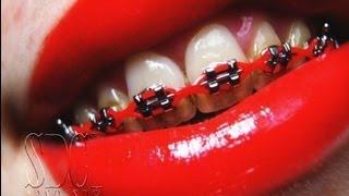 Repeat youtube video จัดฟัน เชนจัดฟัน พาวเวอร์เชนจัดฟัน