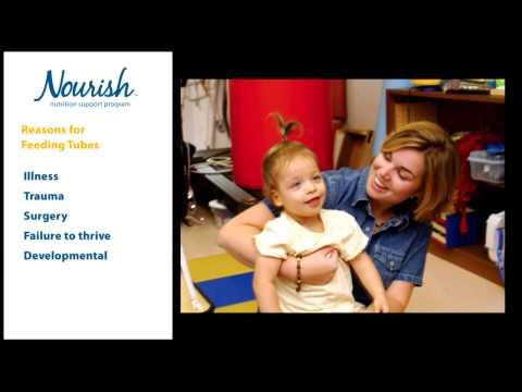 Home Tube Feeding for Children - Introduction
