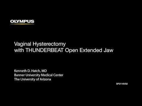 Vaginal Hysterectomy with THUNDERBEAT OEJ - Olympus - Dr Hatch