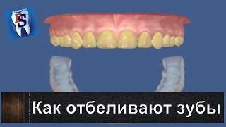 Как отбеливают зубы в стоматологическом кабинете. Уроки стоматологии