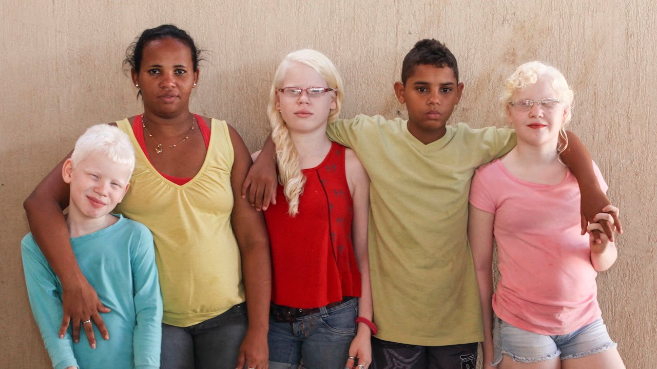 My Albino Children Black Brazilian Family Have Three White Skinned