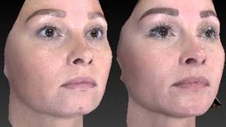 Chin Augmentation Surgery 3D Before and After - 1