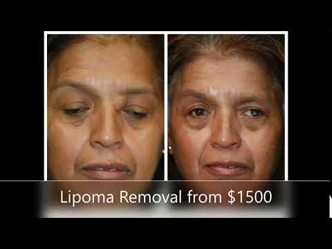 Lipoma West Palm Beach | Lipoma Removal Surgery Palm Beach