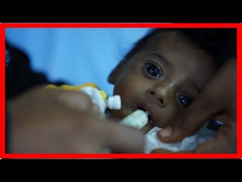 Yemeni security warning on 20 November: food, 2017Us News-