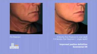 Ulthera Before and After Photos - Ultherapy at the office of Dr. Victor Michalak