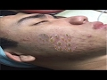 Removal Blackheads On The Face Easy │How To Remove Blackheads Easy (Part 18)