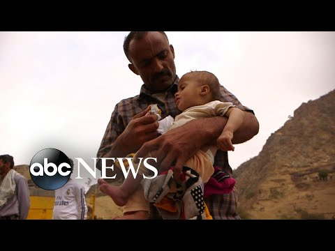 Inside Yemen's civil war where 8 million people are on the brink of starvation