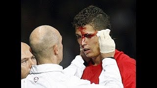 Cristiano  Ronaldo Top 3 worst injuries of whole football career