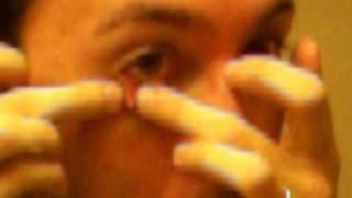 guy pops a huge stye on his eye nastyest thing ever