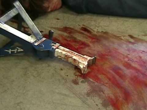 teen work accidents