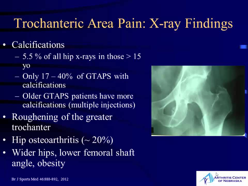 Trochanteritis x ray